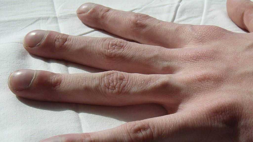 Симптом барабанных палочек у больного муковисцидозом