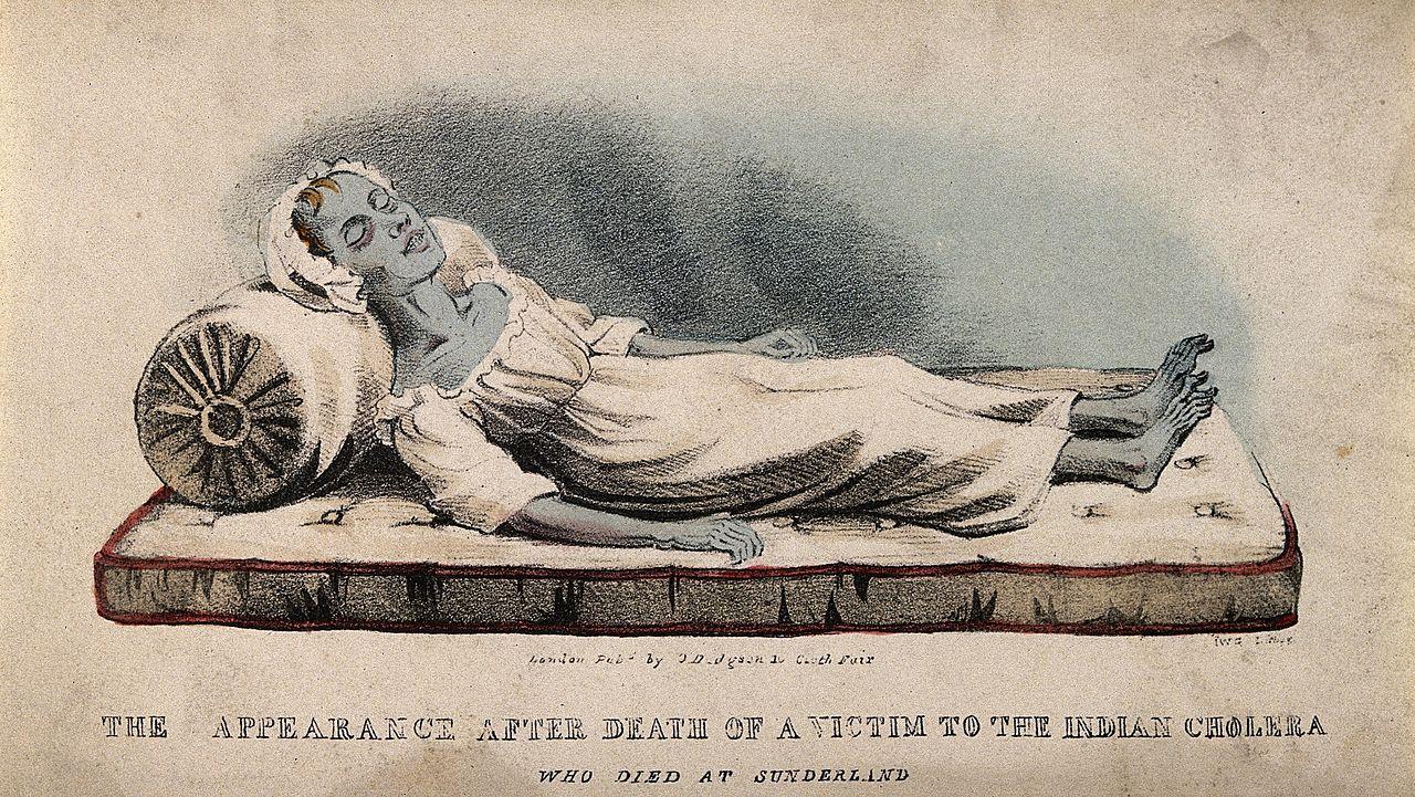 Жертва индийской холеры в Сандерлэнде, 1832