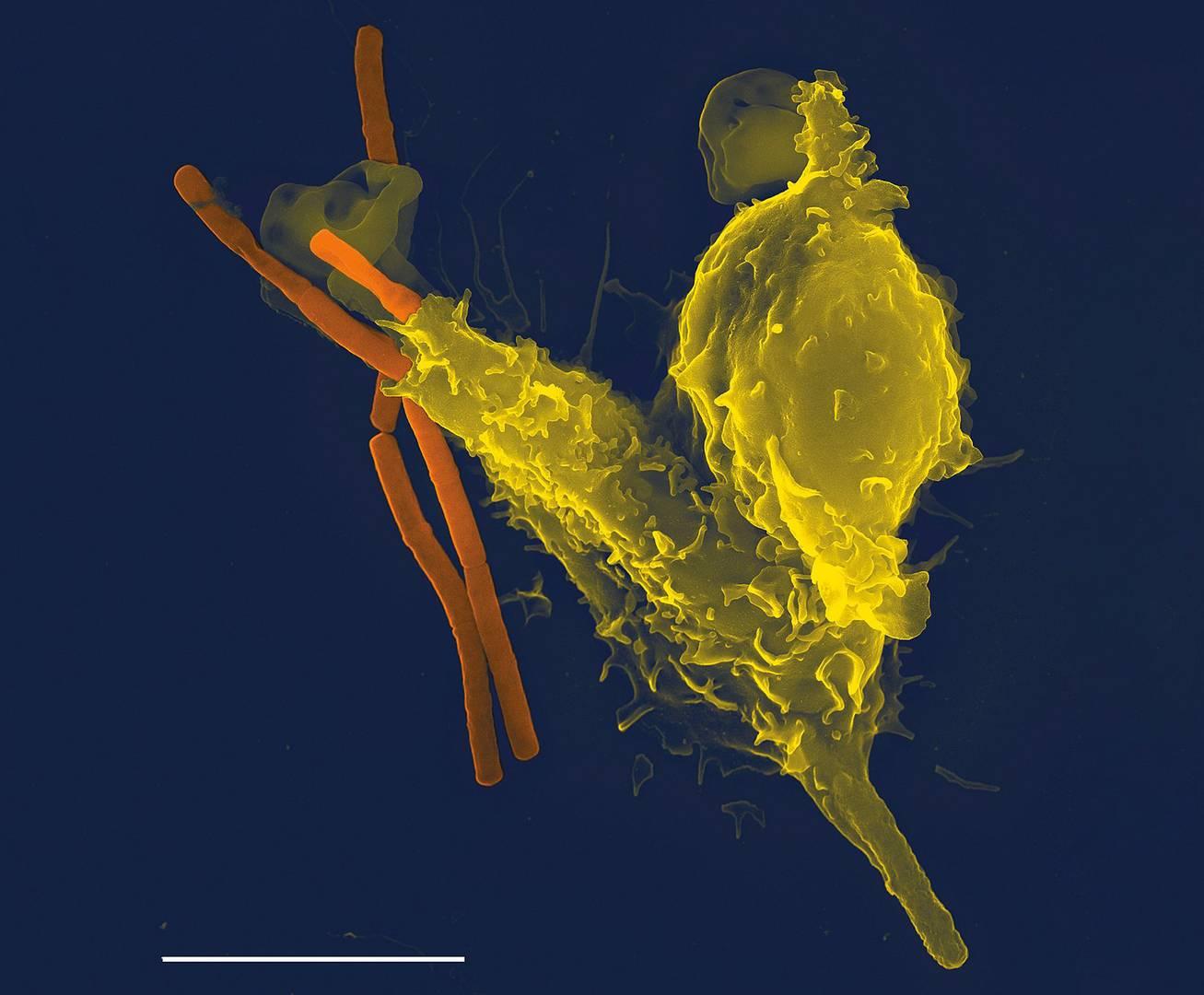 Фагоцит (нейтрофил) поглощает бациллу сибирской язвы