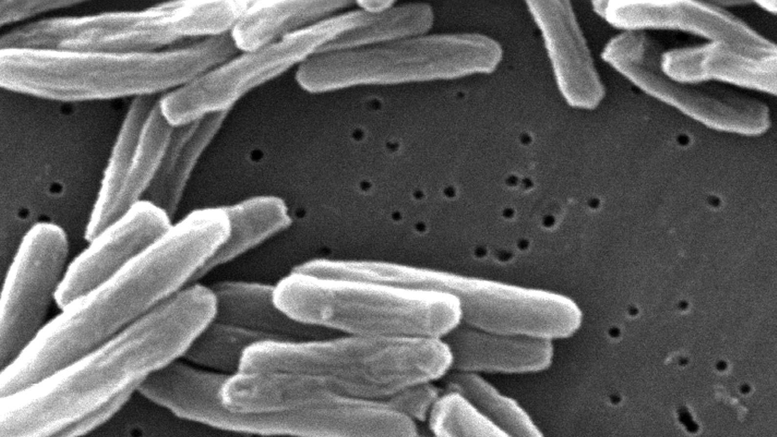 Микробактерия туберкулеза под микроскопом.